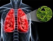Туберкулез все еще является проблемой Дальнего Востока