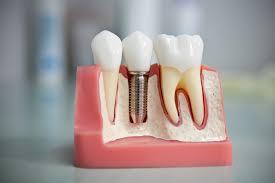 Имплантация зубов как альтернатива протезированию